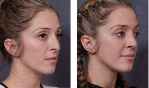 Before and After Rhinoplasty by Dr Hodgkinson