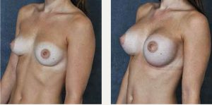 Before and After Saline Implants by Dr Hodgkinson