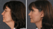 Before and After Facelift and Neck lift Surgery