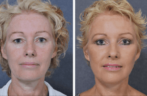 droopy-eyelid-surgery