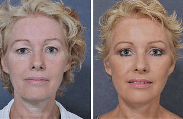 Do you have droopy eyelids?  Eyelid surgery might be for you!