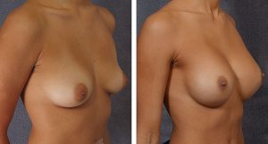 breast-augmentation-before-and-after