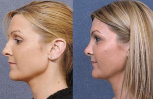 rhinoplasty-hump-on-nose