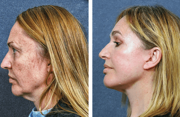 Pan Facial Rejuvenation