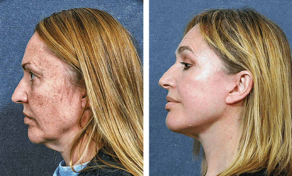 Pan Facial Rejuvenation Dr Hodgkinson