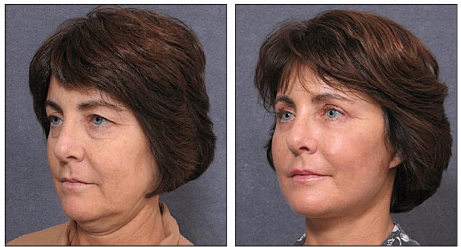 Neck Liposuction Surgery In Sydney Australia