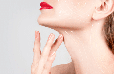 What is a neck-lift?