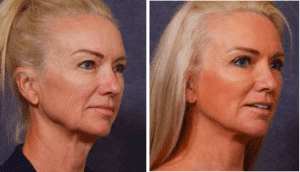 Before and After Facial Rejuvenation by Dr Hodgkinson