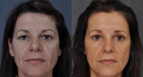 eyelid surgery women