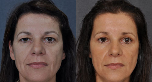 The appearance of women before and after the facelift eyelid surgery