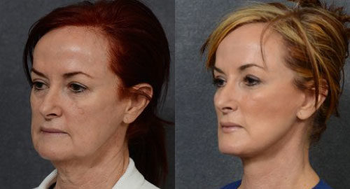 facelift women