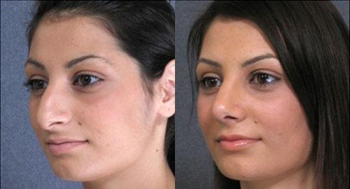 nose reshaping women