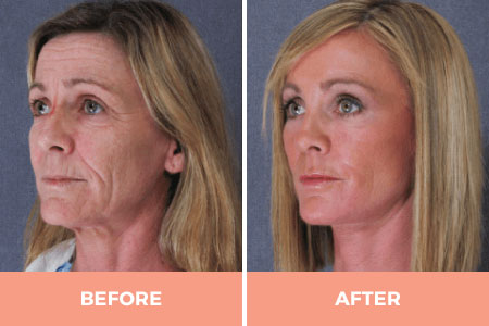 Cosmetic Facelift Surgery In Sydney | Dr Hodgkinson