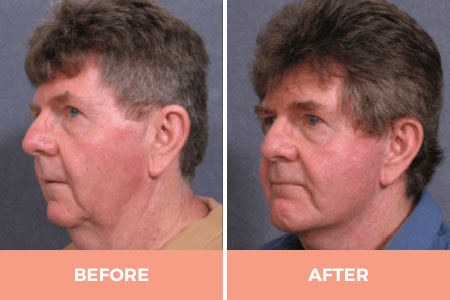 Before and after face and neck lifts
