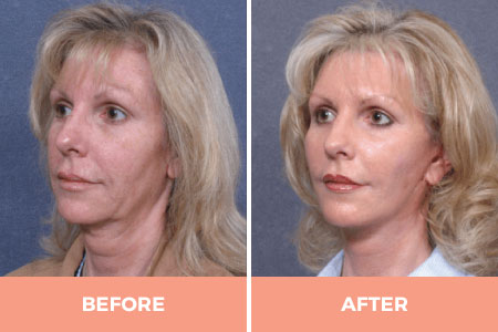 Before and after facelift with removal of threads