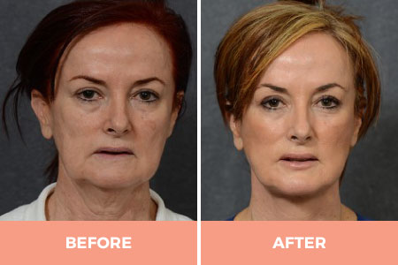 6 Months before and after facelift and neck lift
