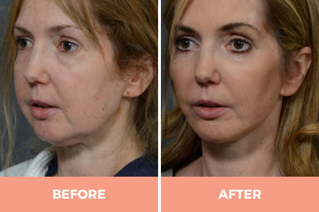 Before and after facelift and necklift