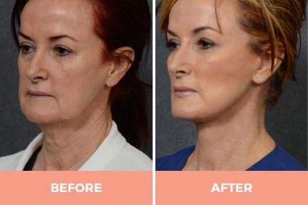 Before and 6 months after facelift and necklift