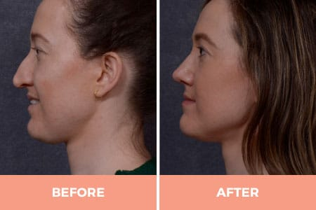 Nose Reconstruction Surgery