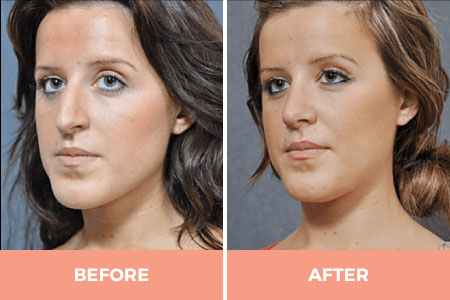 nose surgery rhinoplasty