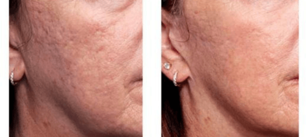 INFINI® To Tighten Ageing Skin and Improve Acne Scarring