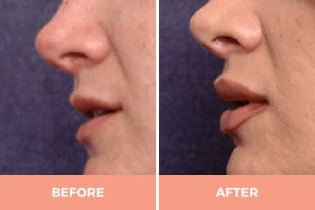 A before and after of lip augmentation performed by Dr. Hodgkinson