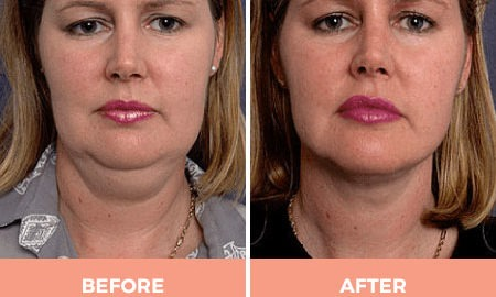 Double Chin Reduction by Liposuction