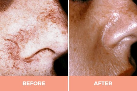KTP / Aura Laser for Facial Spider Veins