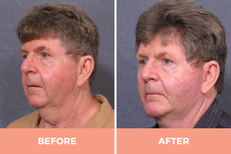 Before and 4 after mid lower male facelift