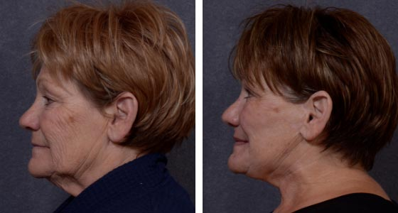 Before and after upper neck lift upper