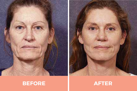 Before and After Female Facial Rejuvenation by Dr Hodgkinson