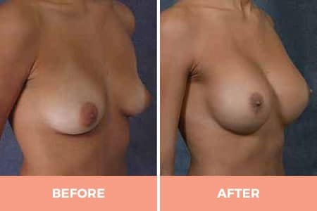 Before and After Breast Augmentation with smooth walled saline implants