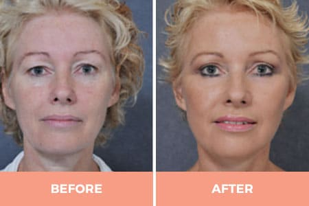 Before and after of droopy eyelid surgery performed by Dr. Hodgkinson
