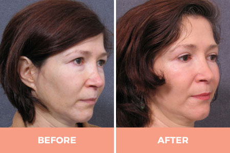 Eyelid Fat Removal - Herniated Fat Bags