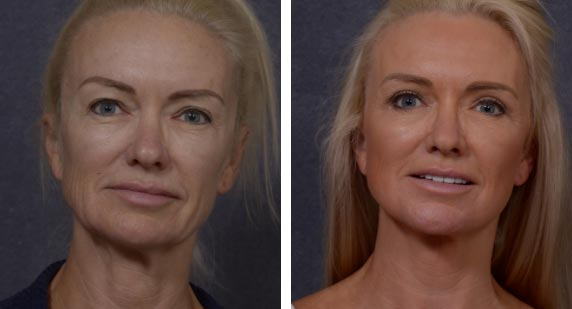 Natural Looking Facelift Results