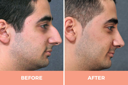 male rhinoplasty