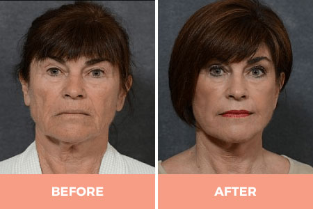 Mini Neck Lift