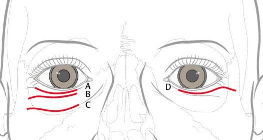 Tear Trough Septal Reset Fat Transposition