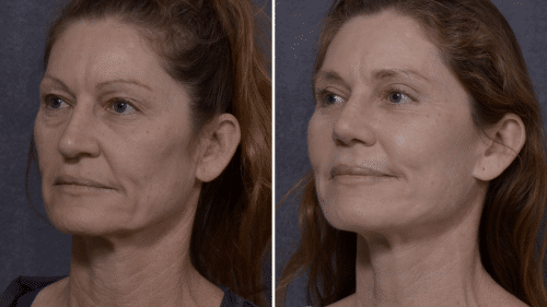 Nose Reshaping (Rhinoplasty)