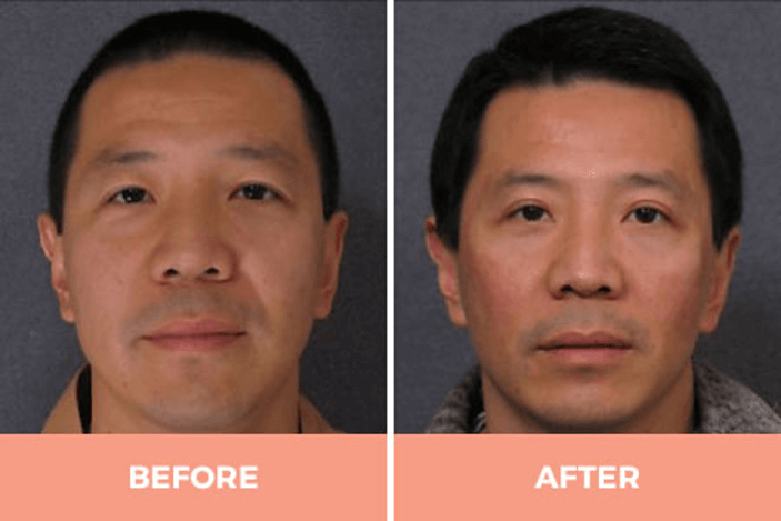 double eyelid asian eye surgery