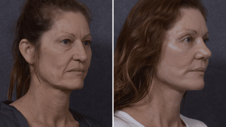 nose reshaping rhinoplasty Sydney