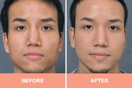 revision secondary rhinoplasty