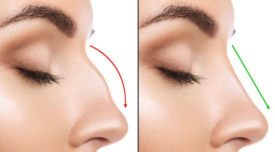 rhinoplasty surgery sydney