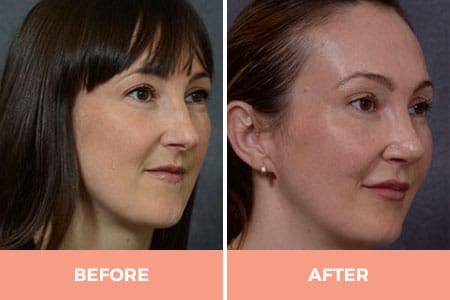 female rhinoplasty sydney