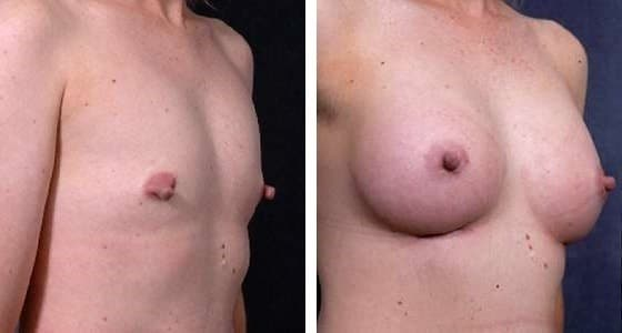 31 yo - 300cc saline implant in partial subpectoral pocket. 4 months post operative