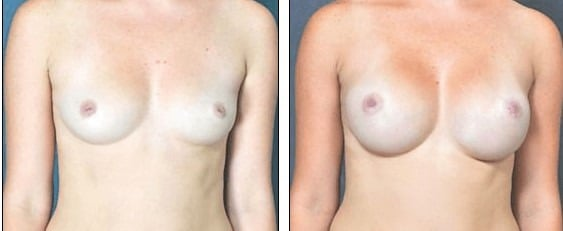 Correcting Inverted Nipples at the Same Time as Breast Augmentation