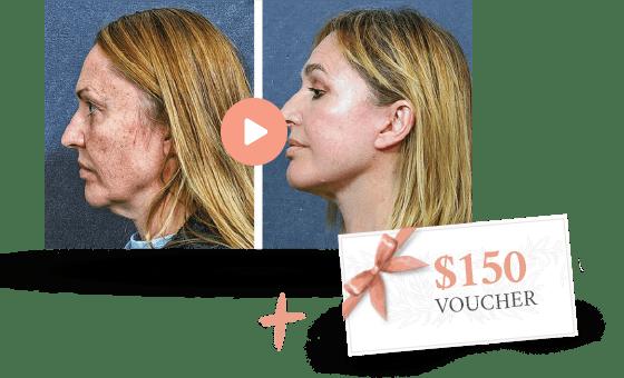 $150 gift voucher for a facelift consultation in Sydney