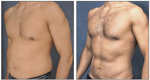 Liposuction for men by Dr Hodgkinson