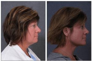 Rhinoplasty with Neck Liposuction by Plastic Surgeon Dr Hodgkinson