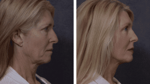 Rhinoplasty with Face Lift by Plastic Surgeon Dr Hodgkinson